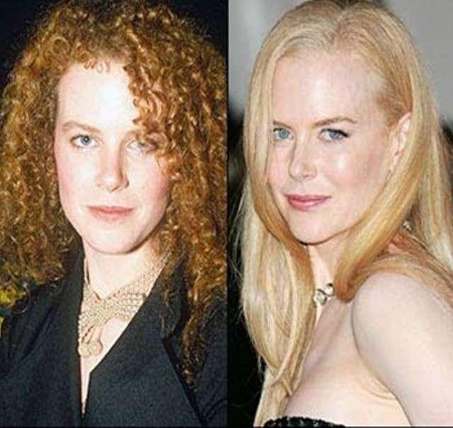 L'attrice prima e dopo i ritocchi