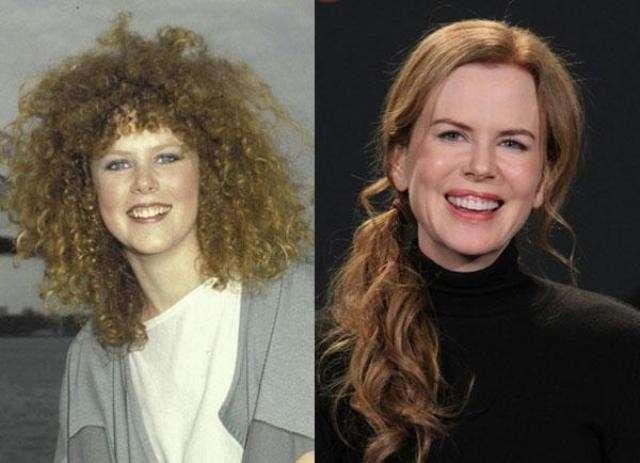 Nicole Kidman prima e dopo essersi rifatta