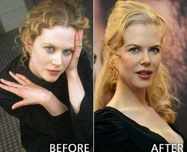 Nicole Kidman prima e dopo il ritocco