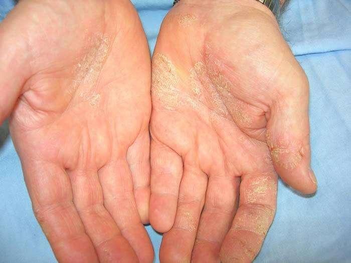 Dermatite sui palmi delle mani