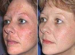 Macchie cutanee diffuse sul viso