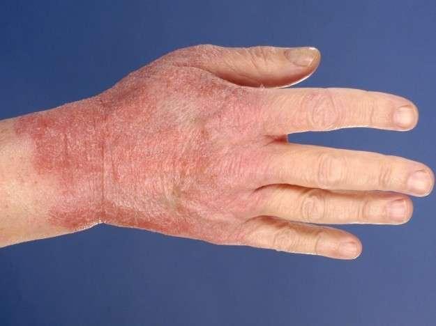 Dermatite sulle mani