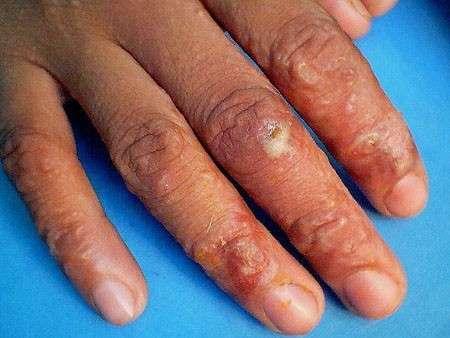 Abrasioni e lesioni