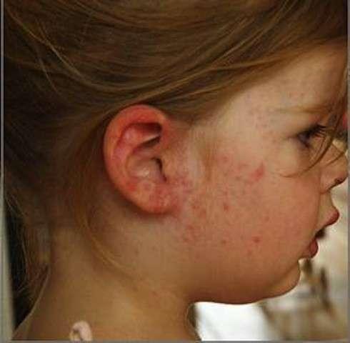 Dermatite su una bambina