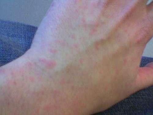 Sintomi dell'orticaria sulla mano