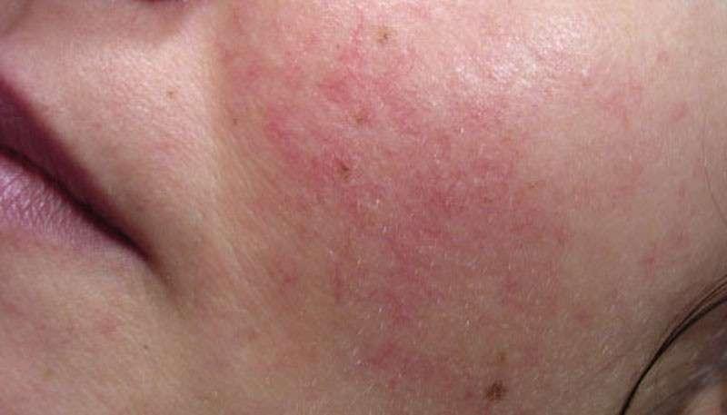 Angioma cutaneo sulla guancia