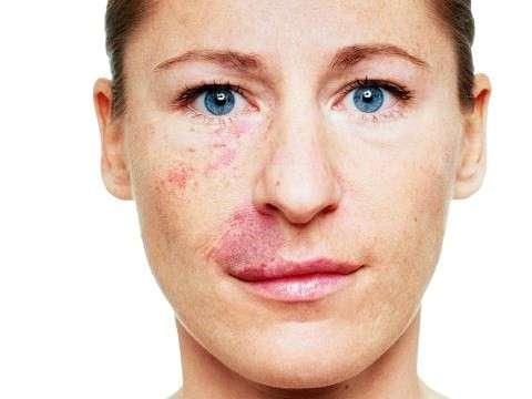 Angioma diffuso sul volto