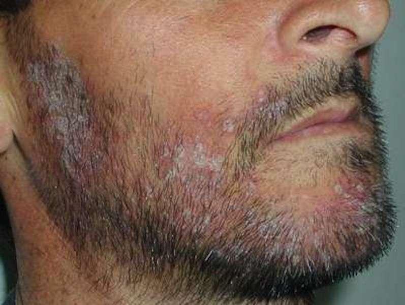 Dermatite seborroica sulla barba