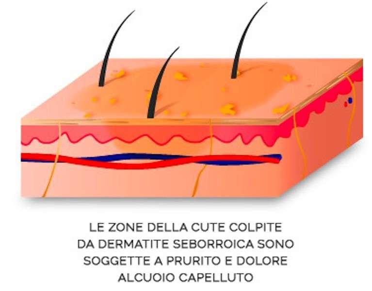 Sintomi della dermatite sulla pelle