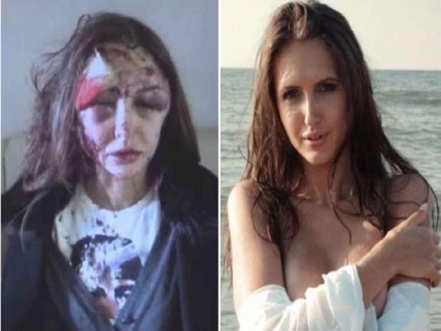 Alexandra prima e dopo