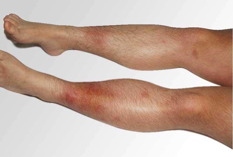 Eritema nodoso sugli arti inferiori