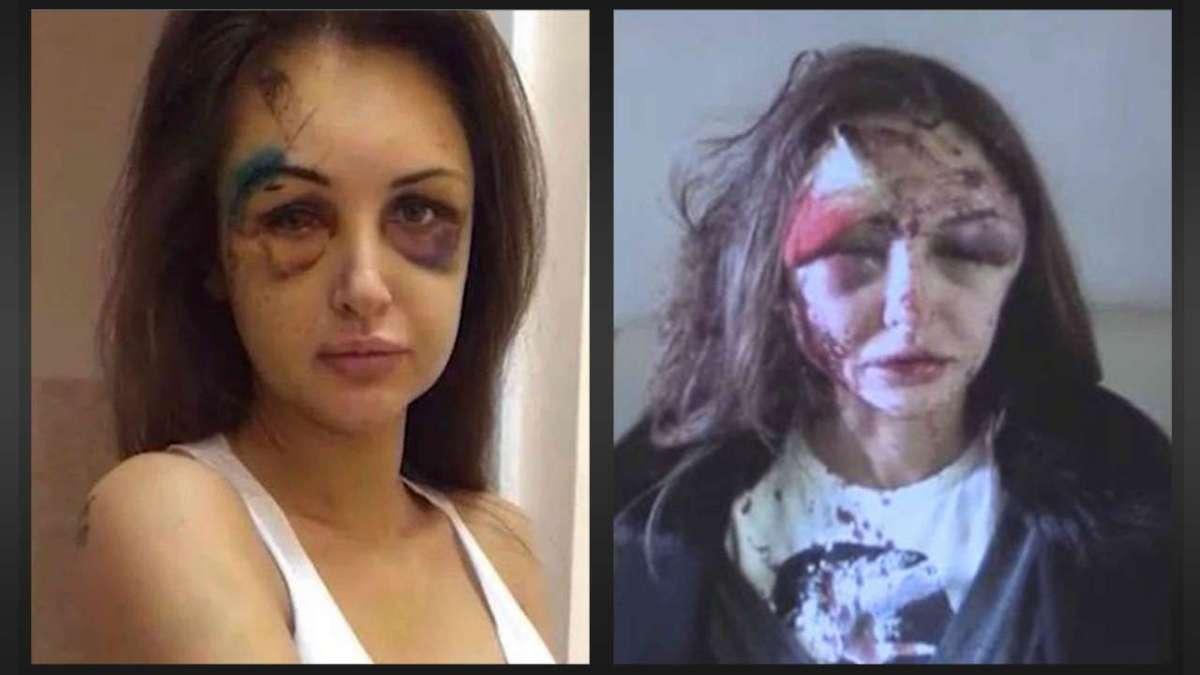 Il volto sfigurato di Alexandra Sereda