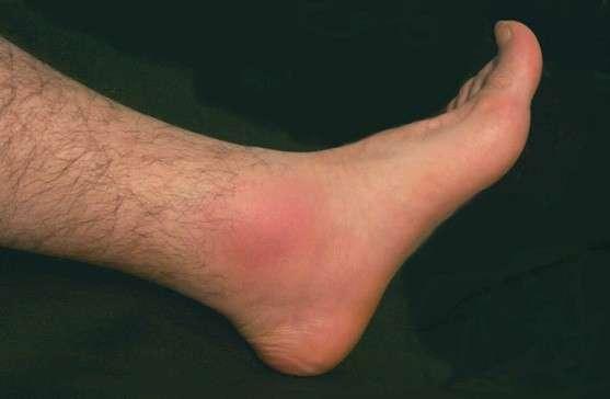 Infiammazione sul piede