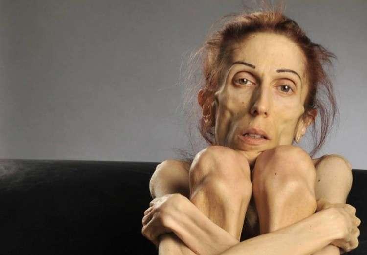 L'ex modella durante la malattia
