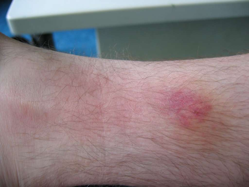 Puntura di tafano infetta