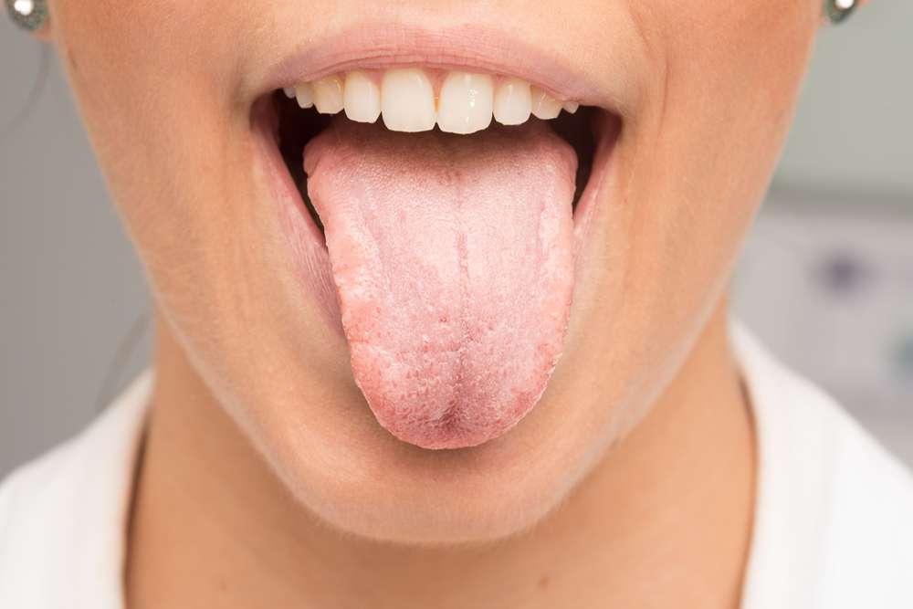 Durata della candidosi orale