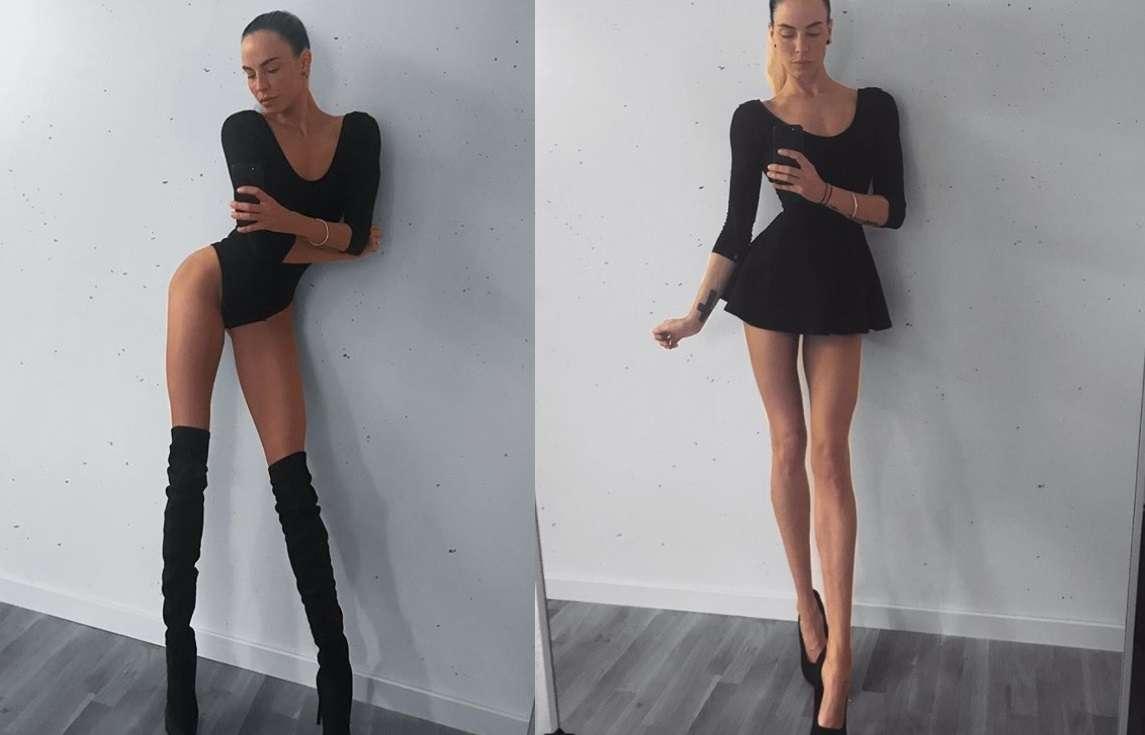 Ia Ostergren, la modella svedese dalla gambe lunghissime vittima di bullismo